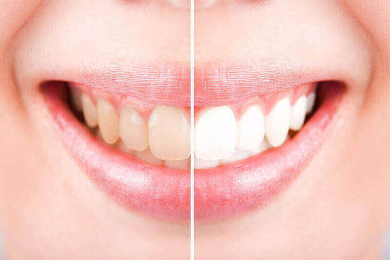 Teeth Whitening Edmonton